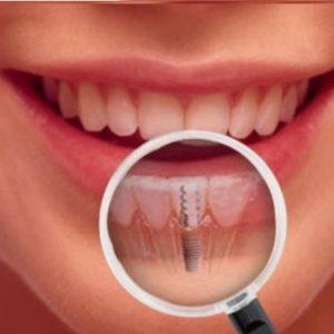 Saiba os benefícios dos implantes dentário