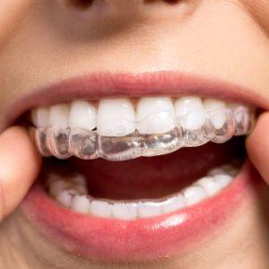 Quais os riscos do clareamento dentário?