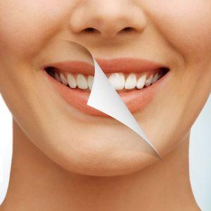 É seguro clarear os dentes?