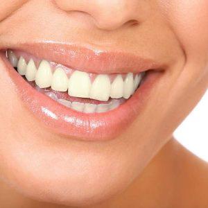 Quais alimentos amarelam os dentes?