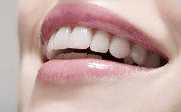 Plástica gengival: harmonia para o sorriso