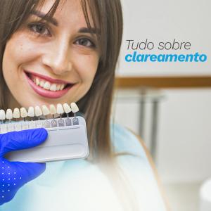 Tudo sobre Clareamento Dentário